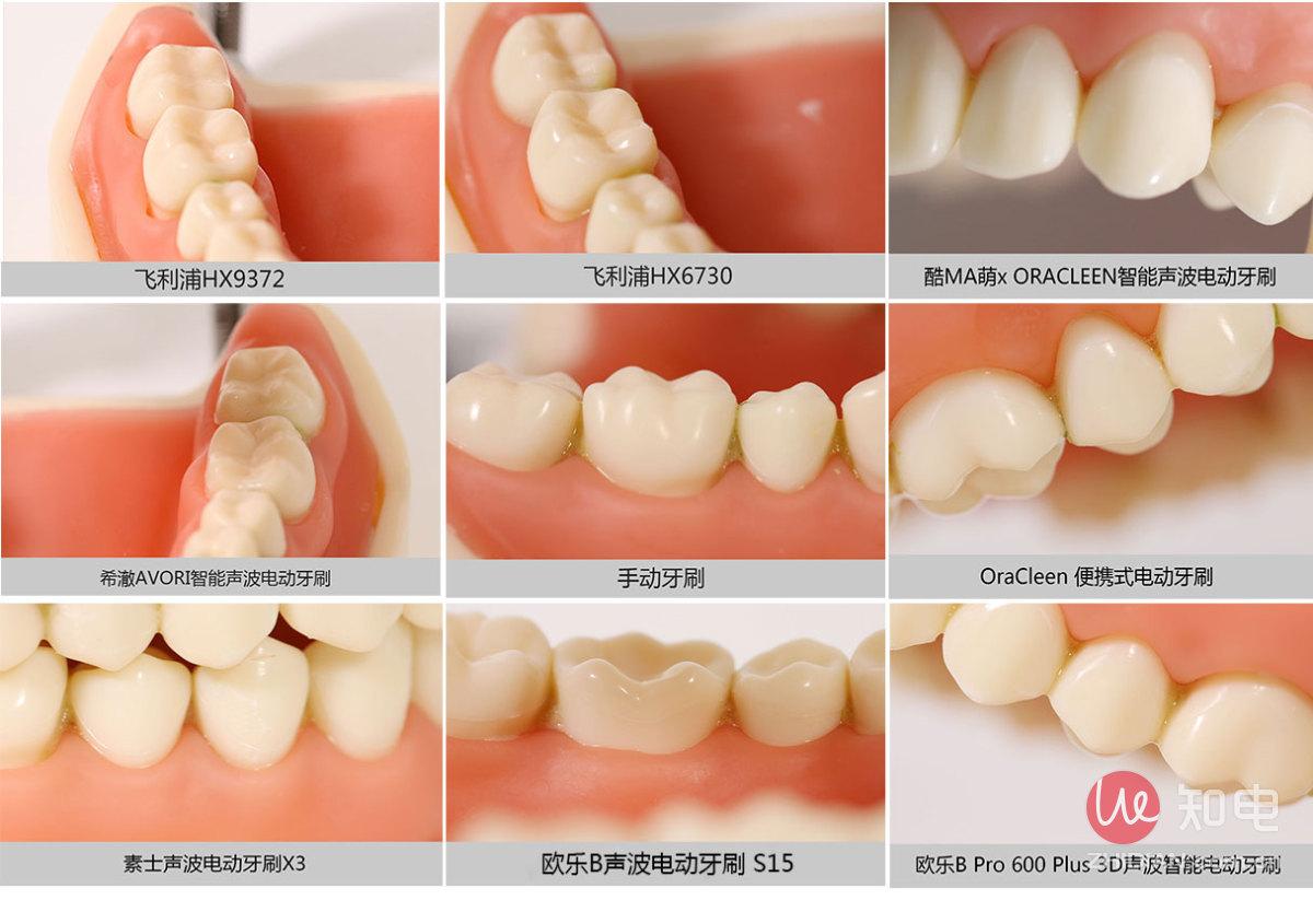 牙缝清洁.jpg
